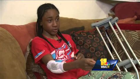 Teen injured in police-pursued dirt bike incident - YouTube